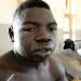 BURNT: Amos Ssuubi.